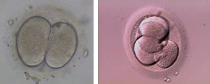 2 Cell and 4 Cell Embryo