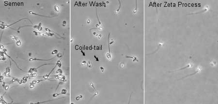 Before and after zeta processing for sperm selection.