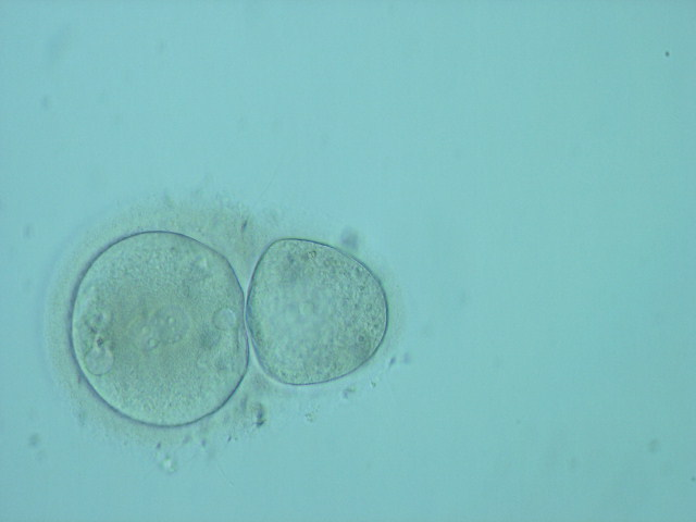 2PN zygote and GV in 1 z.p.
