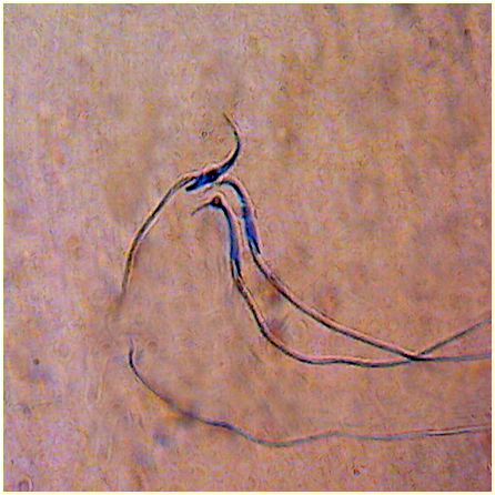 IMMATURE SPERMATOZOA-ANILINE BLUE STAINING