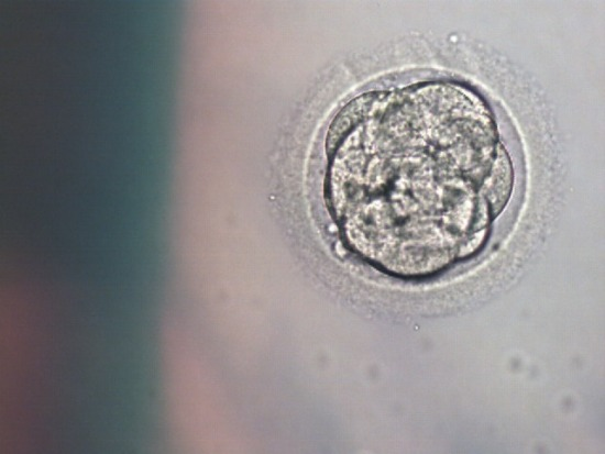 day-4 embryo after PGD