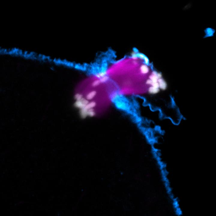 Chromosome segregation error in human oocyte (Actin in cyan; Chromosomes in grey; Microtubules in magenta). This material relates to a paper that appeared in the June 5, 2015 issue of Science, published by AAAS. The paper, by Zuzana Holubcova at the Medical Research Council in Cambridge, UK, and colleagues was titled, 'Error-prone chromosome-mediated spindle assembly favors chromosome segregation defects in human oocytes.'