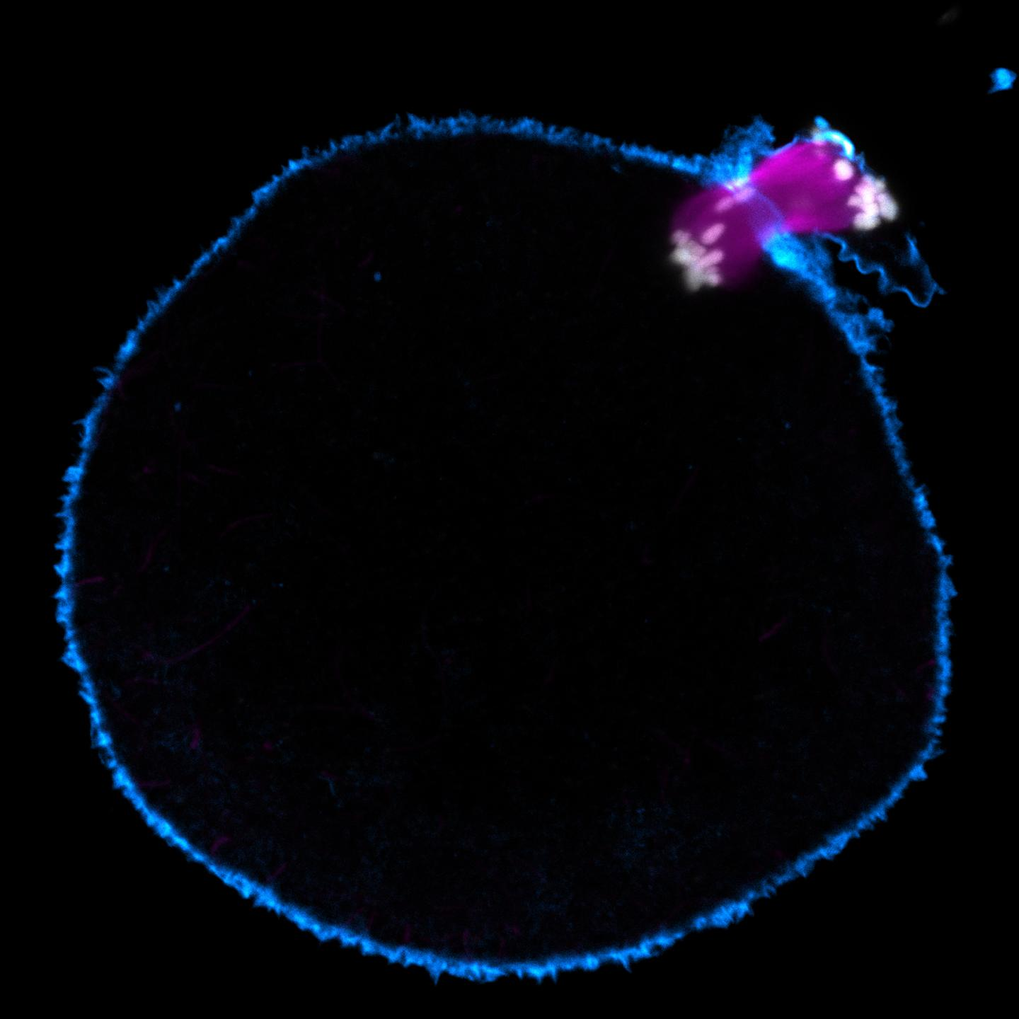 Chromosome segregation error during in human oocyte (Actin in cyan; Chromosomes in grey; Microtubules in magenta) - Whole oocyte. This material relates to a paper that appeared in the June 5, 2015 issue of Science, published by AAAS. The paper, by Zuzana Holubcova at the Medical Research Council in Cambridge, UK, and colleagues was titled, 'Error-prone chromosome-mediated spindle assembly favors chromosome segregation defects in human oocytes.'