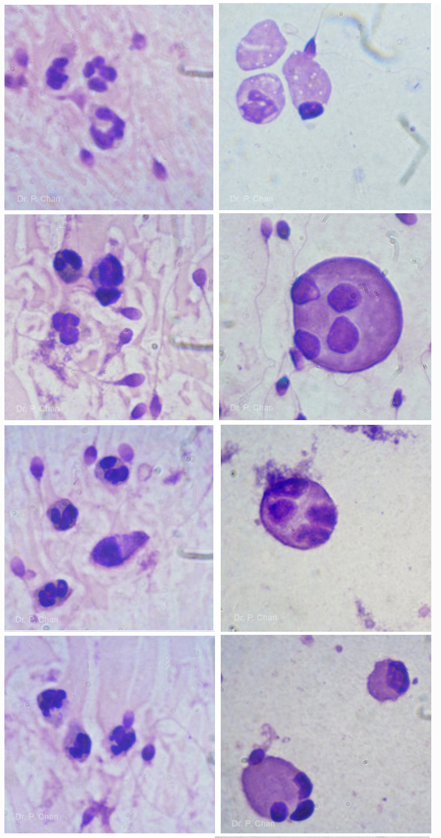 Difference between PMN leukocytes (left) and spermatids (right)