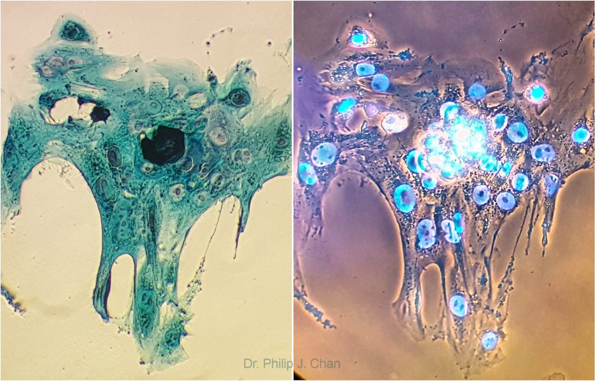 [Left] Single implanted embryo (Day 10) with darker ICM (center) and surrounding trophoblast cells. Stain used was sequential Rose Bengal mix, Pyronin Y mix and Fast Green FCF-Janus Green mixture (Spermac). [Right] Dual fluorescence stain applied showing live (white), apoptotic (blue) or necrotic (pink) cells. Reference: http://www.hindawi.com/journals/ijrmed/2015/562567/