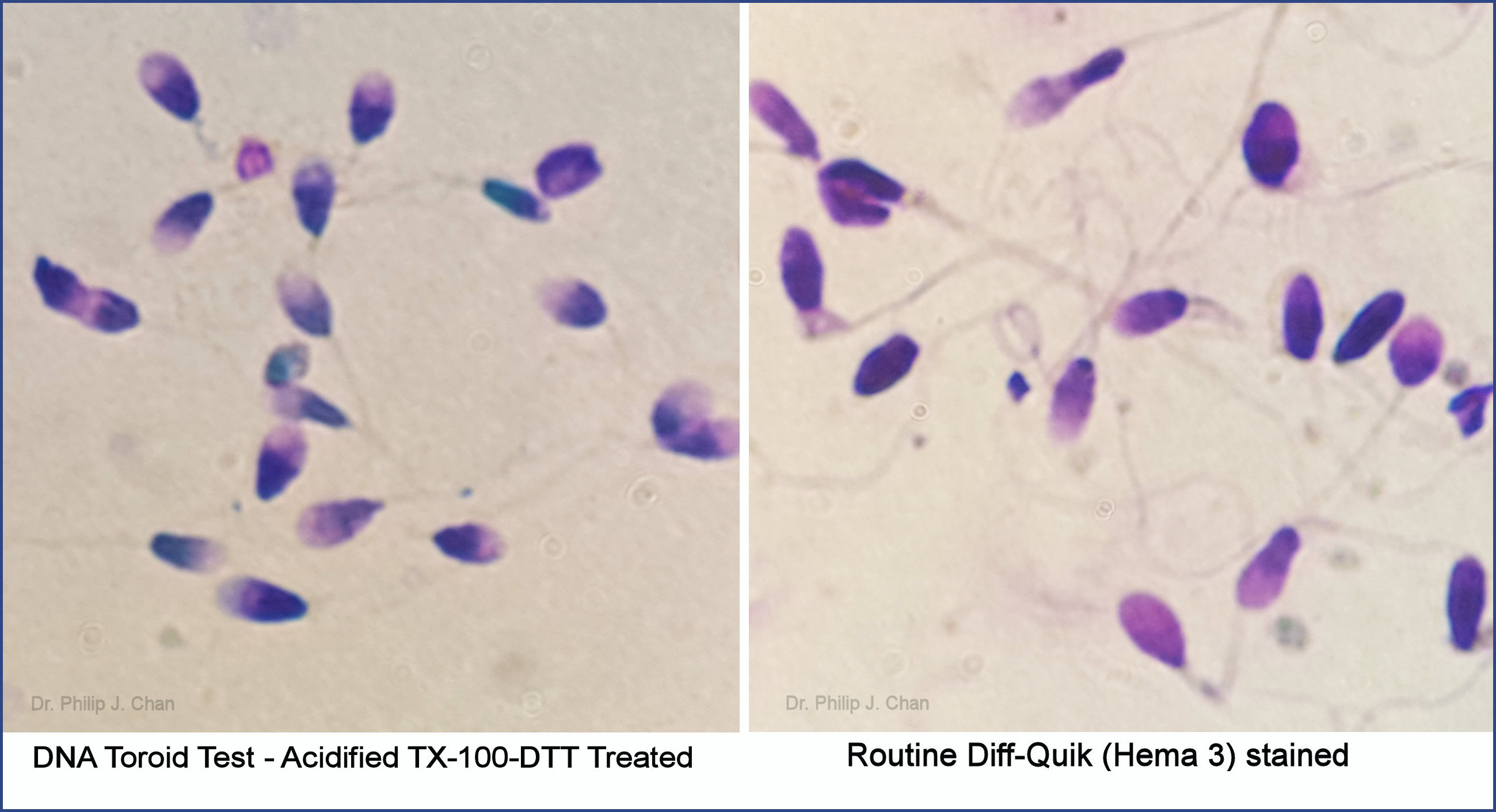 Washed sperm with resultant pregnancy. With pre-treatment, light versus dark (DNA damaged) sperm are easier to identify when compared with routine staining. 500x. (http://www.hindawi.com/journals/bmri/2015/780983/)