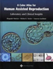 A Color Atlas for Human Assisted Reproduction: Laboratory and Clinical Insights (Hardcover)